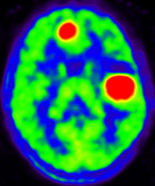Диагностика болезни Паркинсона с помощью ПЭТ КТ с 11С-Метионином