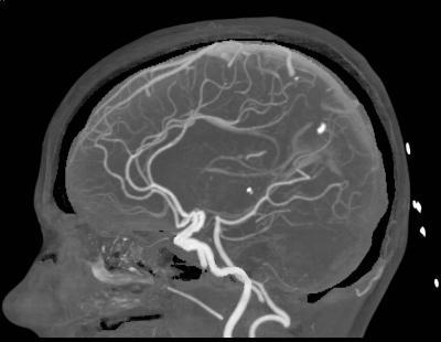 КТ-ангиография сосудов головного мозга