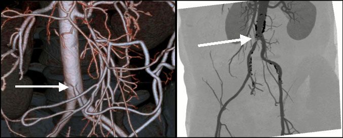 24Стеноз мезентар артерии.jpg