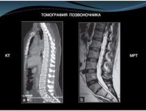 Снимок позвоночника при КТ (слева) и при МРТ (справа)