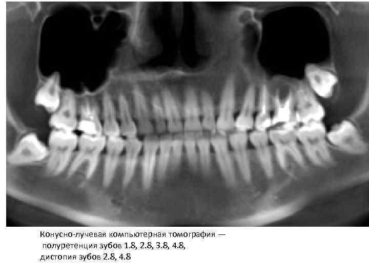 29Аномалия прорезывания зубов мудрости.jpg